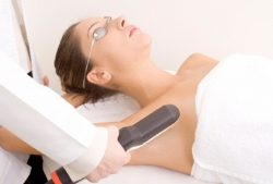 Fotoepiliacija ar plaukų šalinimas lazeriu?